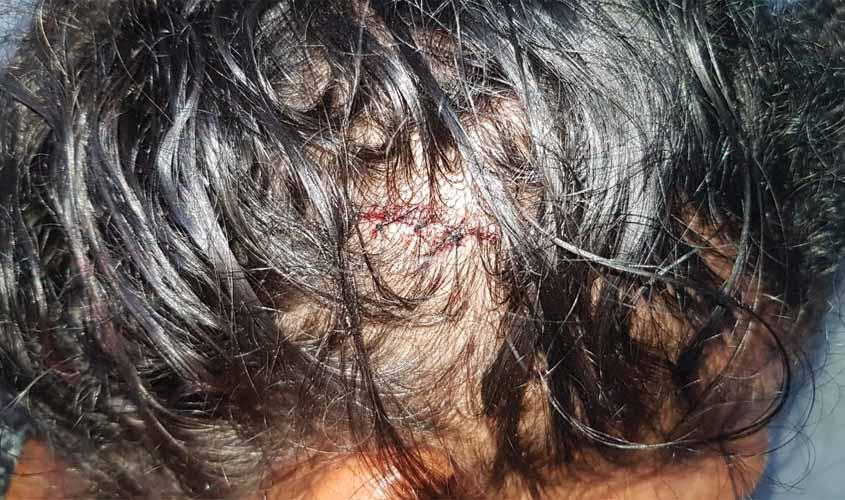 Mulher reclama de som alto da vizinha e acaba ferida a golpes de facão
