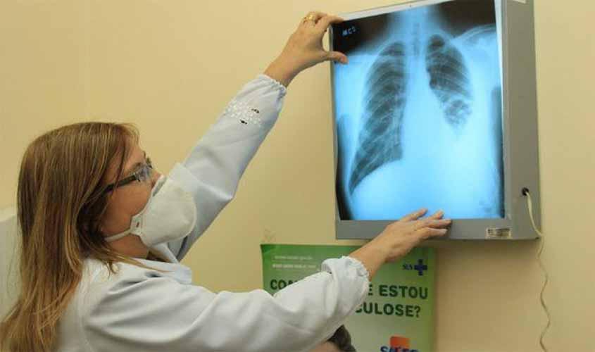 Rondônia inicia campanha contra a tuberculose